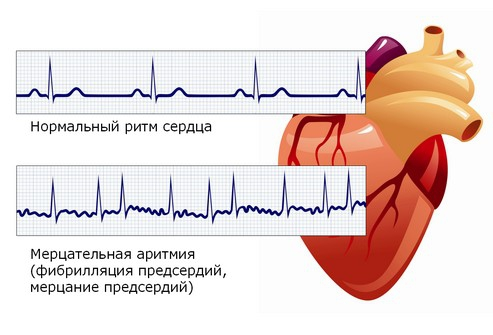 Сердечный ритм - что это?