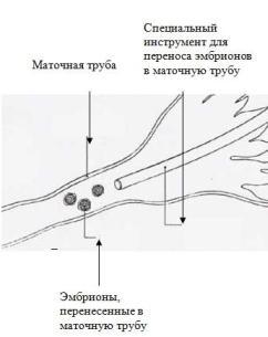 Использование методов ВРТ в лечении бесплодия