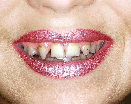 Зубы и здоровье