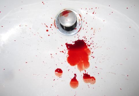 Как остановить кровотечение