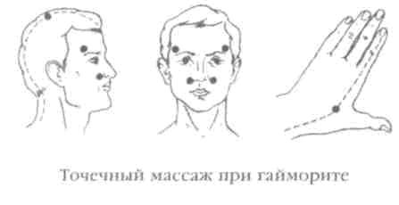 Нетрадиционные методы лечения гайморита