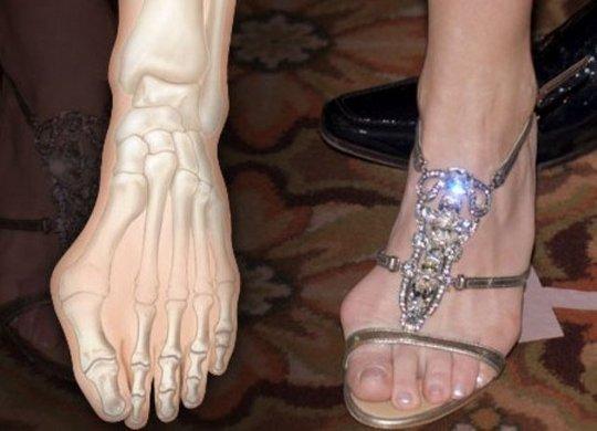 Болезненная косточка на ноге