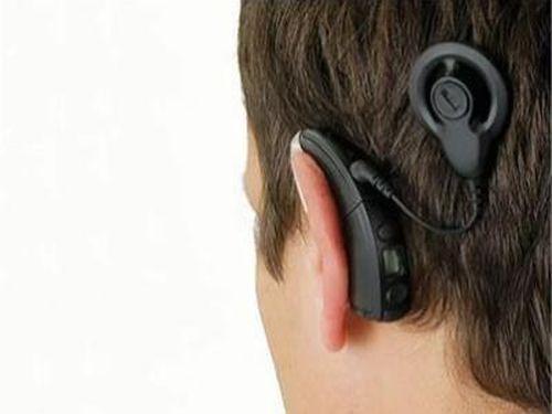 Искусственный слух