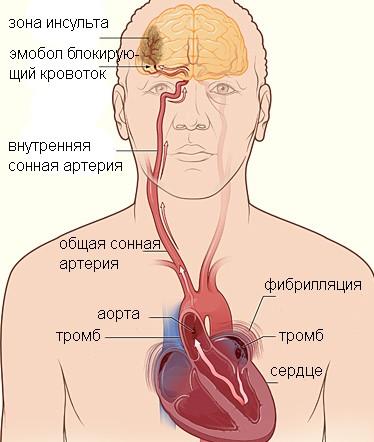 Мерцательная аритмия - что это такое