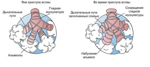 Основные симптомы бронхиальной астмы
