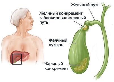 Желчекаменная болезнь-лечим питанием