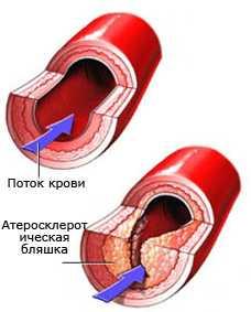 Рецепты от облитерирующего атеросклероза