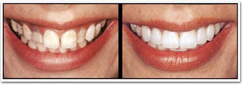 Коррекция формы зубов