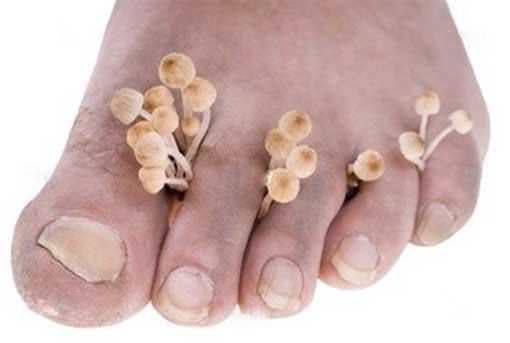 Грибок ногтей и кожи