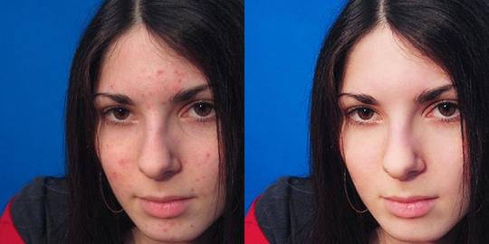 Полезные советы для красоты и здоровья кожи