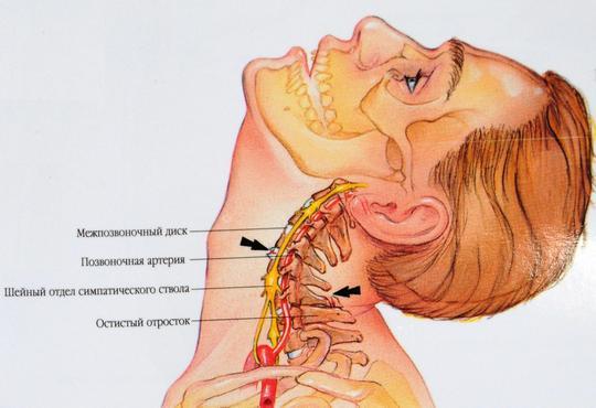 Что такое хлыстовая травма