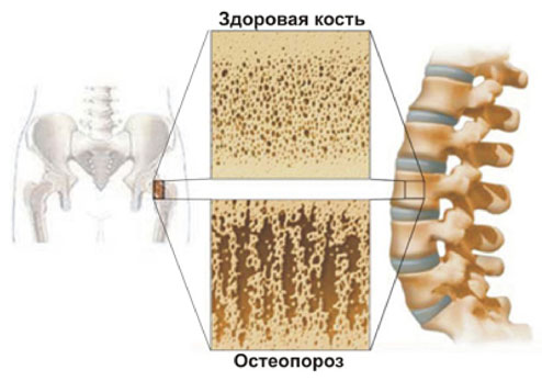 Остеопороз - роль кальция