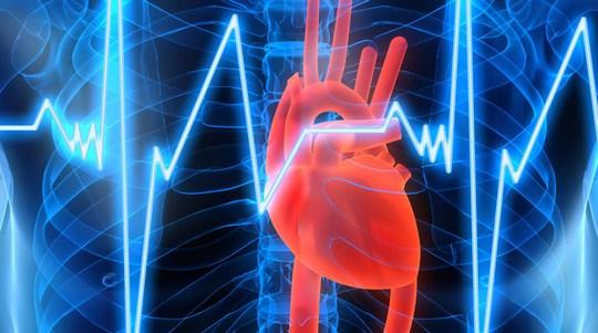 Ишемическая болезнь сердца - проблемы профилактики