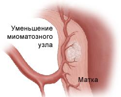 Фитотерапия от миомы