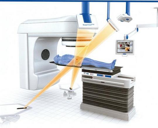 Радиотерапия для лечения онкобольных