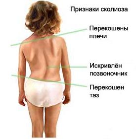 scoliosis-in-children
