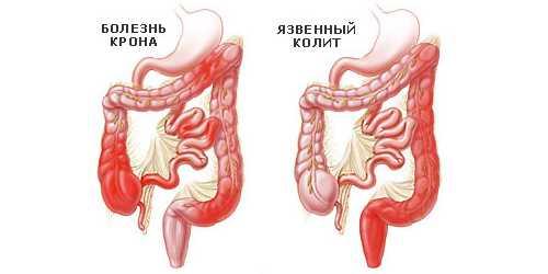Новый метод лечения болезни Крона
