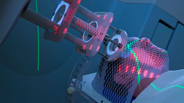 Побочные эффекты радиотерапии