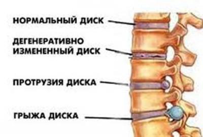 Боль в спине - межпозвонковые диски