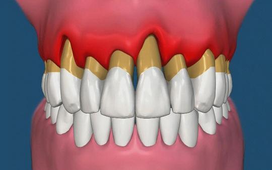 Ортодонтическое лечение при заболеваниях пародонта
