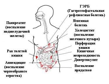 Симптомы некоторых заболеваний
