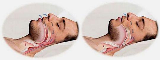 Что такое обструктивное апноэ сна
