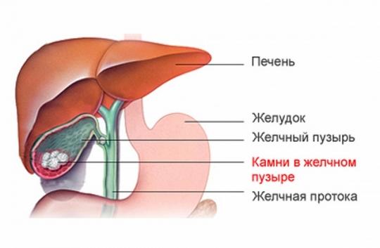 Профилактика желчекаменной болезни