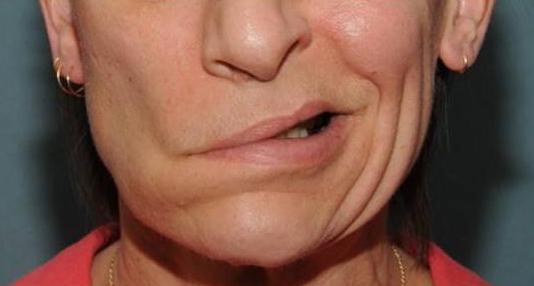 Физическая реабилитация при неврите лицевого нерва