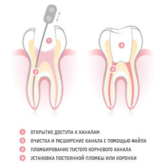 Пломбирование зубов