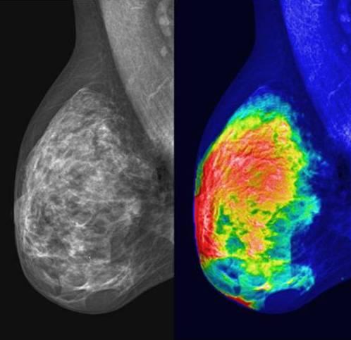 Маммография – ранняя диагностика рака молочной железы