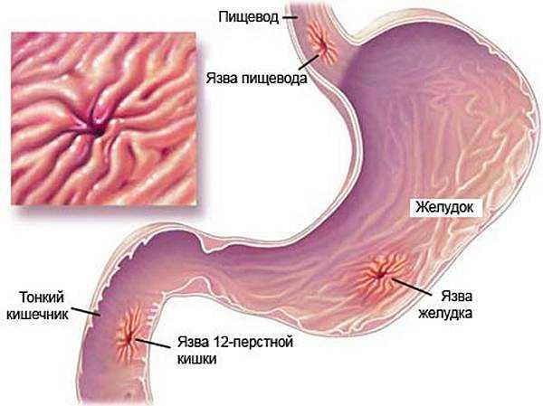 Как избежать сезонного обострения язвенной болезни желудка