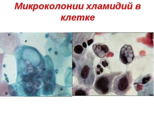 Хламидийные воспалительные заболевания у женщин