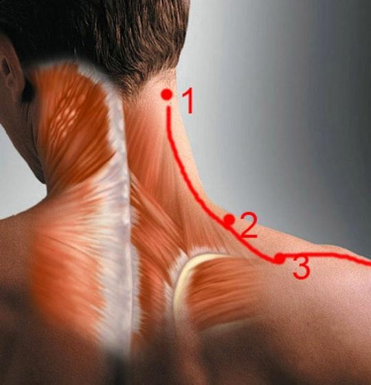 Миозит шеи: симптомы и причины возникновения