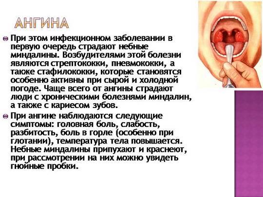 Стрептококковая ангина у детей - ставим диагноз