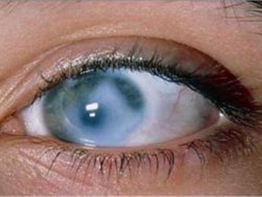 Народные средства от глаукомы