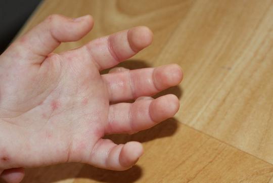 Пузырчатка: народные методы лечения