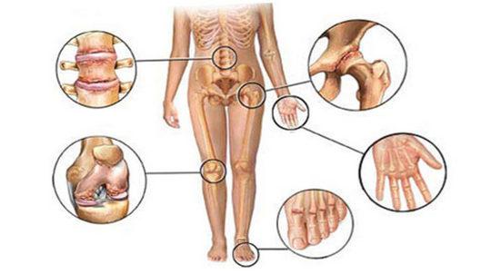 Причины болезней суставов, профилактика